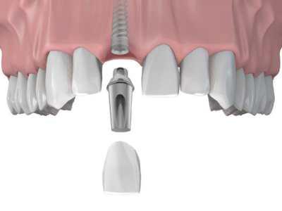 Титан – основа зубного имплантата