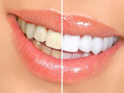 Различные процедуры в стоматологии